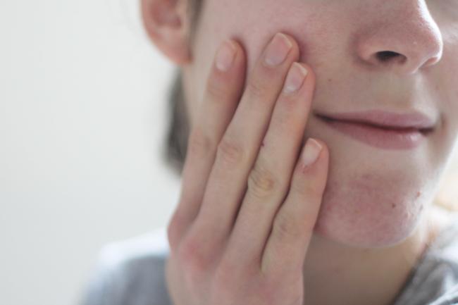 glycolactic REN Skincare